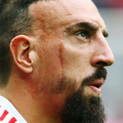 Franck Ribery opowiada o bliznach na twarzy